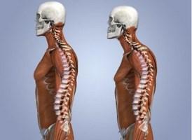 spine-9 (Copy)